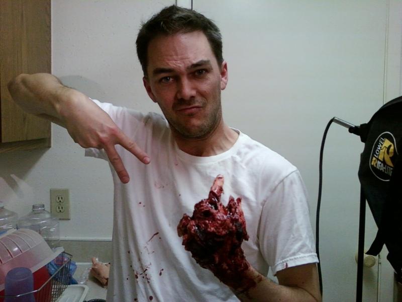 Jan 11, 2012 Mangled hand